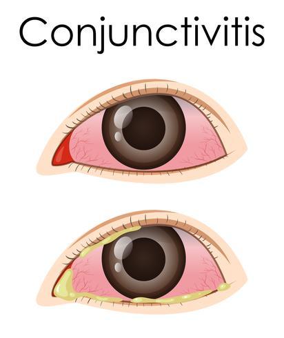 Diagram showing conjunctivitis in human