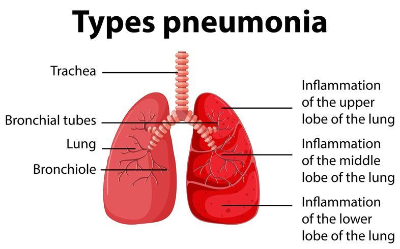 Diagrama que muestra los tipos de neumonía. vector