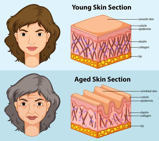 Diagrama que muestra la piel joven y envejecida en humanos