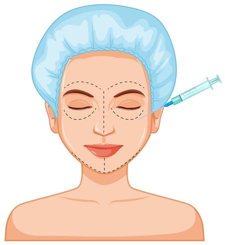 Iniezione della pelle del riempitivo del botox facciale vettore