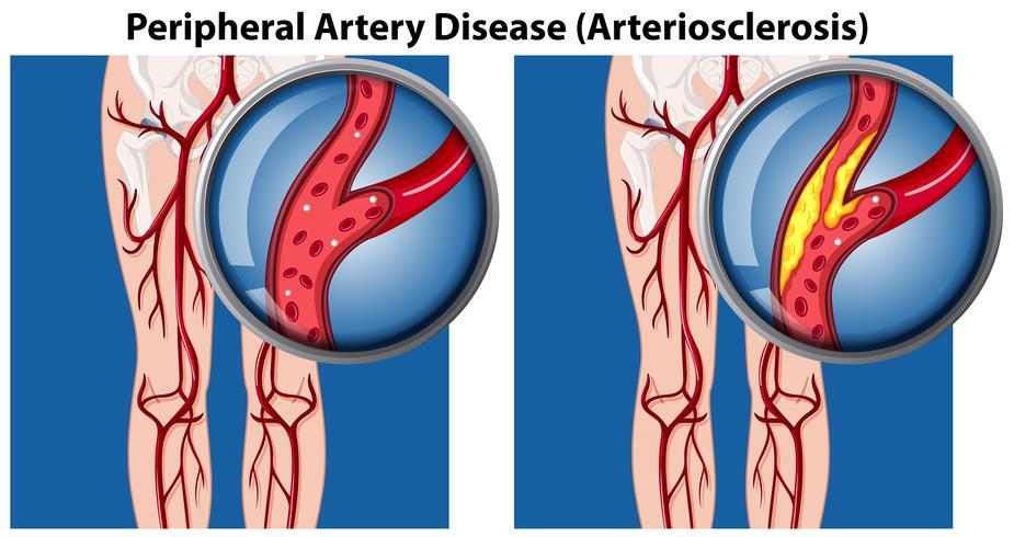 Una comparación de la enfermedad arterial periférica vector