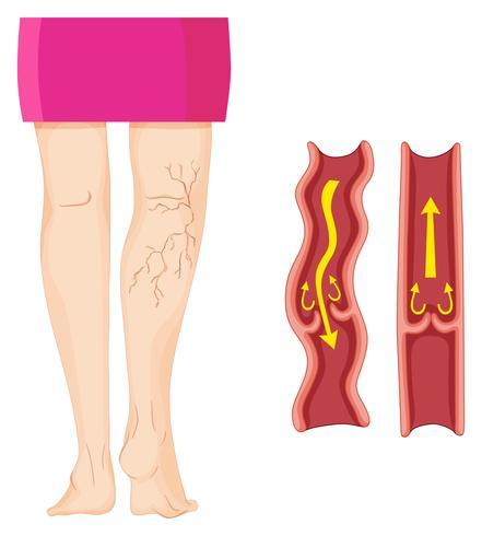 Krampfadern im menschlichen Bein