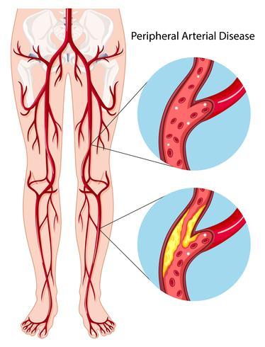 Diagramme de maladie artérielle périphérique