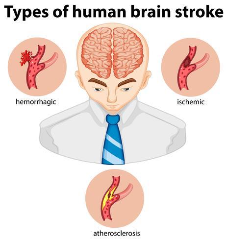 Tipos de apoplejía briana humana vector