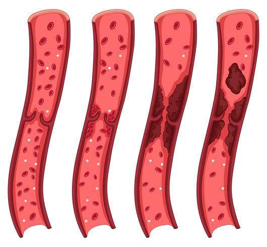 Blutgerinnseldiagramm auf Weiß