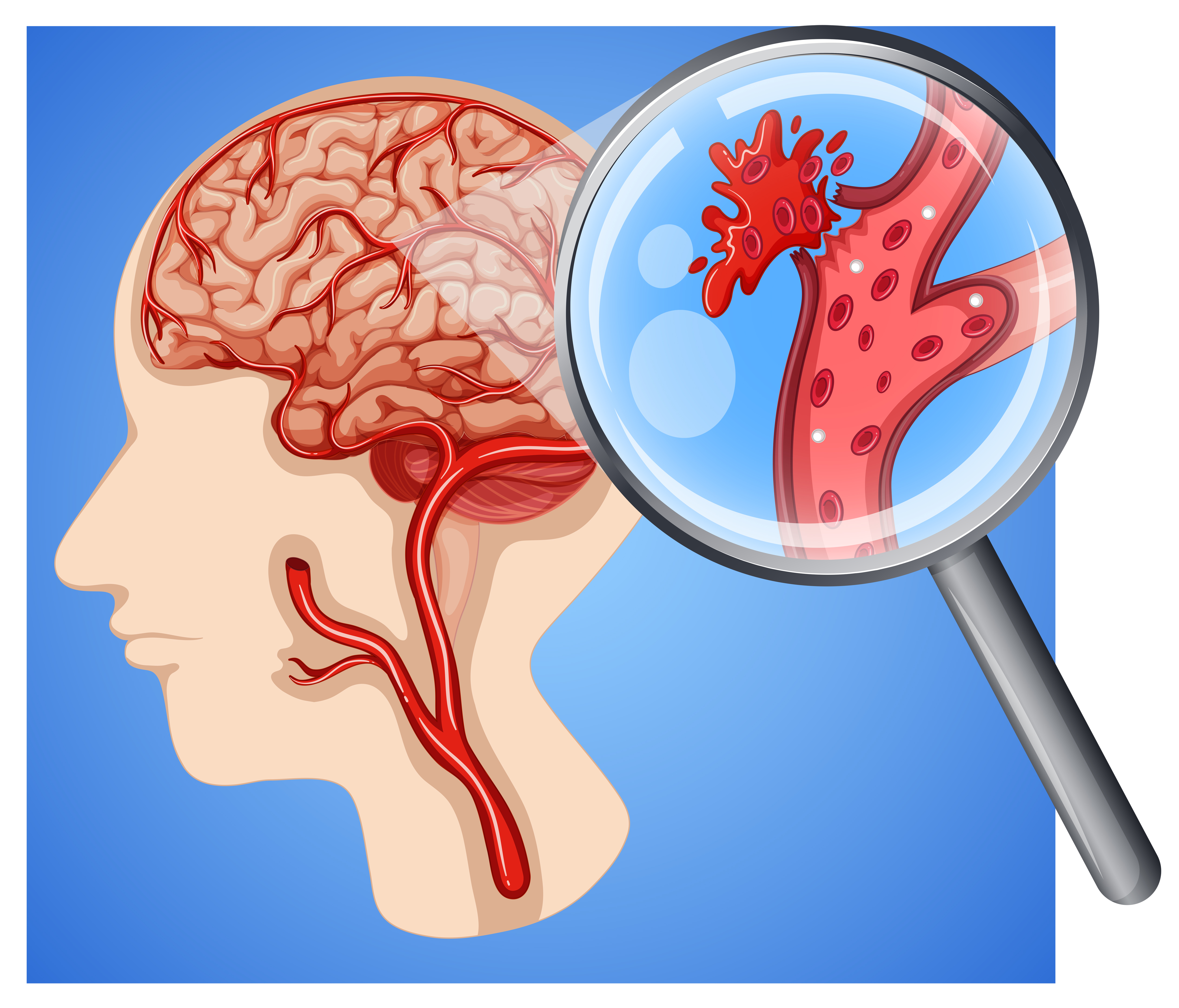 Human with small vessel strokes - Download Free Vectors ...