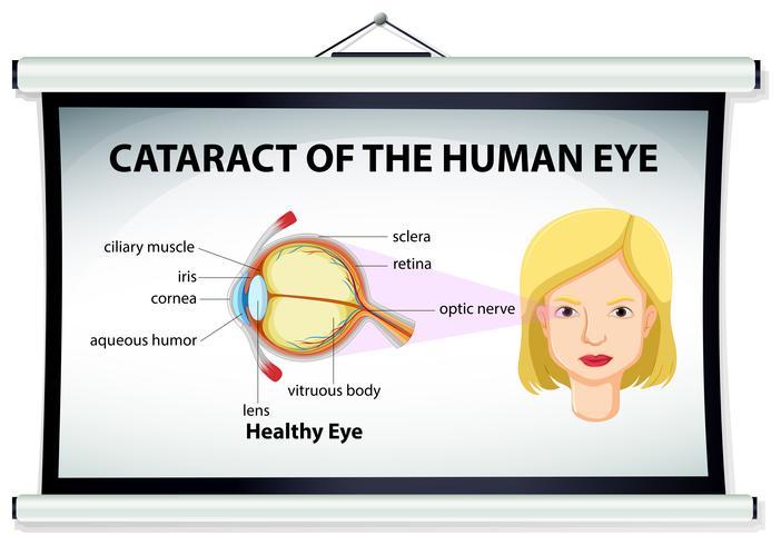 Diagrama de catarata en ojo humano.
