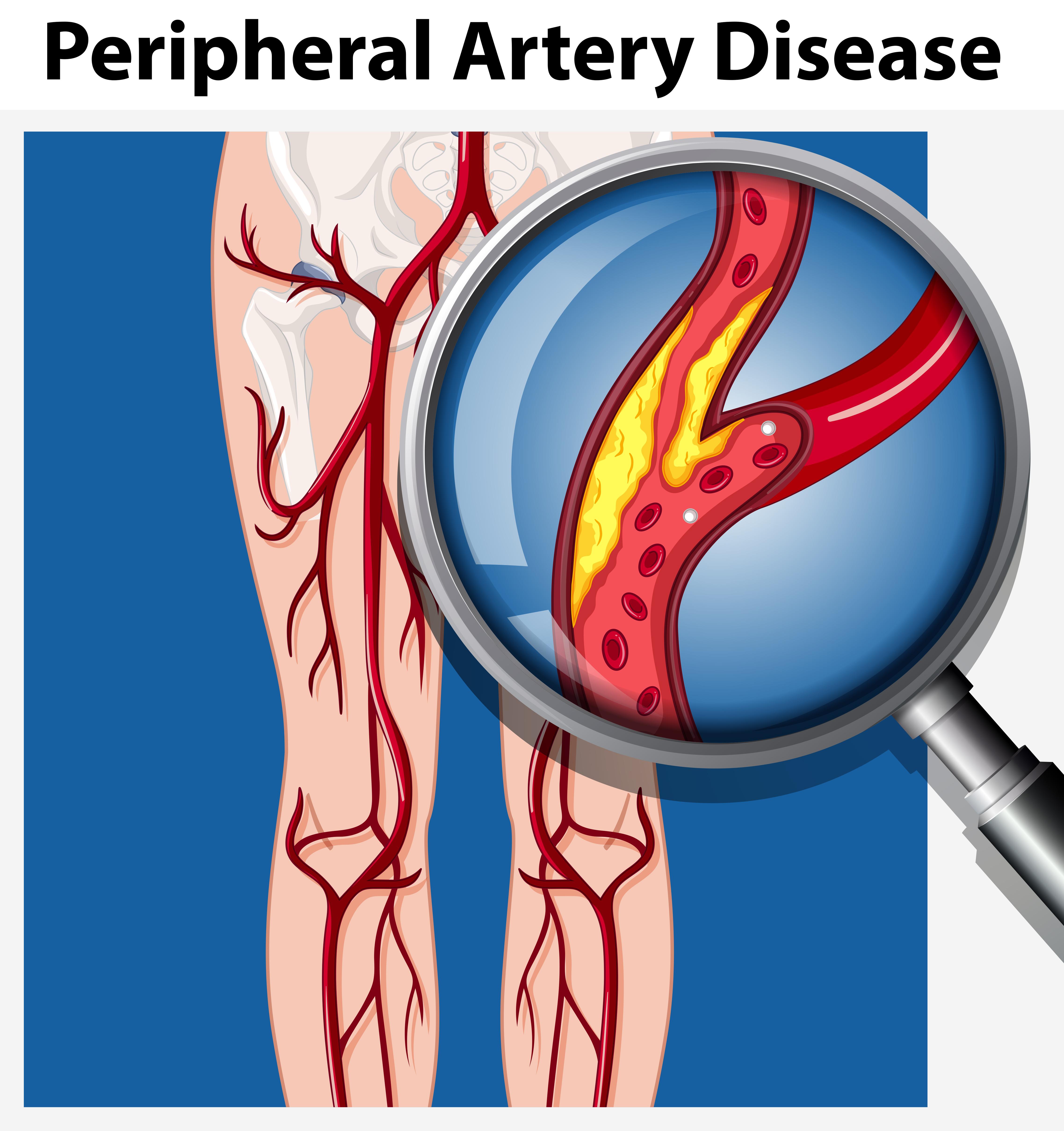 Humano Com Doença Arterial Periférica