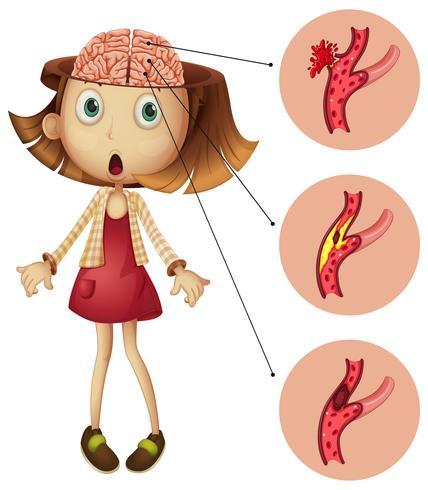 Meisje met hersenslagen diagram