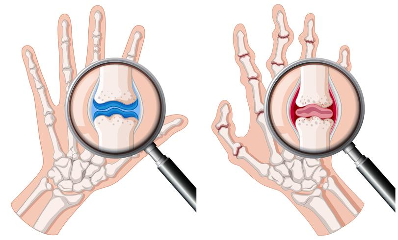 Een menselijke hand met reumatoïde artritis