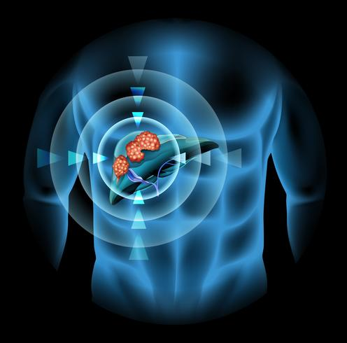 Liver cancer diagram showing details