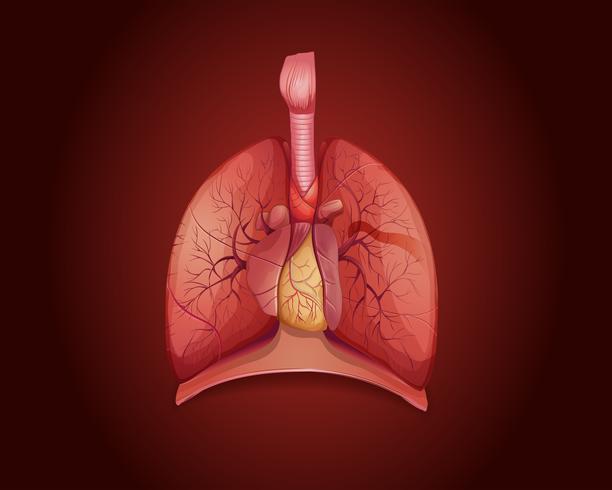 Diagram som visar lungor med sjukdom