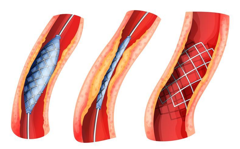Stent zum Öffnen der verstopften Arterie