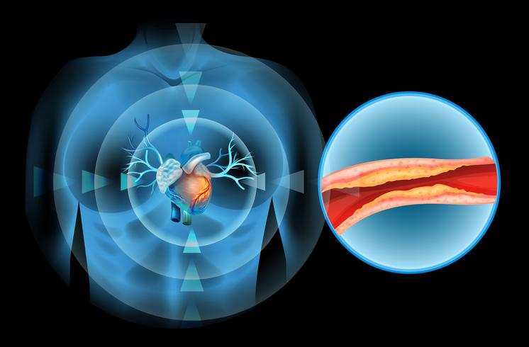 Cholesteral com clock no coração humano