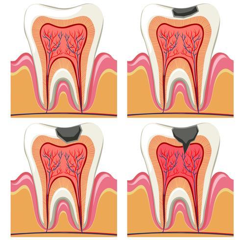 Diagrama de cárie dentária em detalhes
