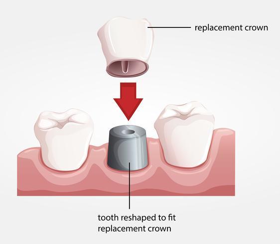 Dental crown procedur
