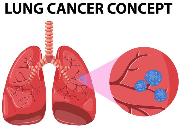 Diagrama do conceito de câncer de pulmão