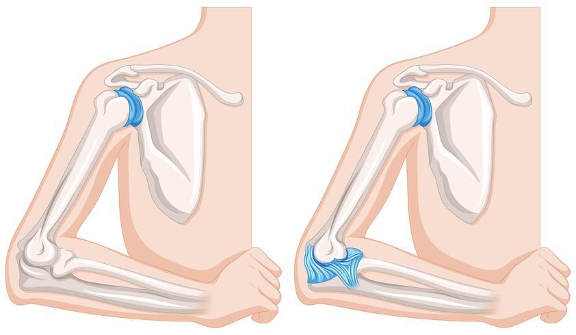 Chiuda sul diagramma delle articolazioni del gomito umano