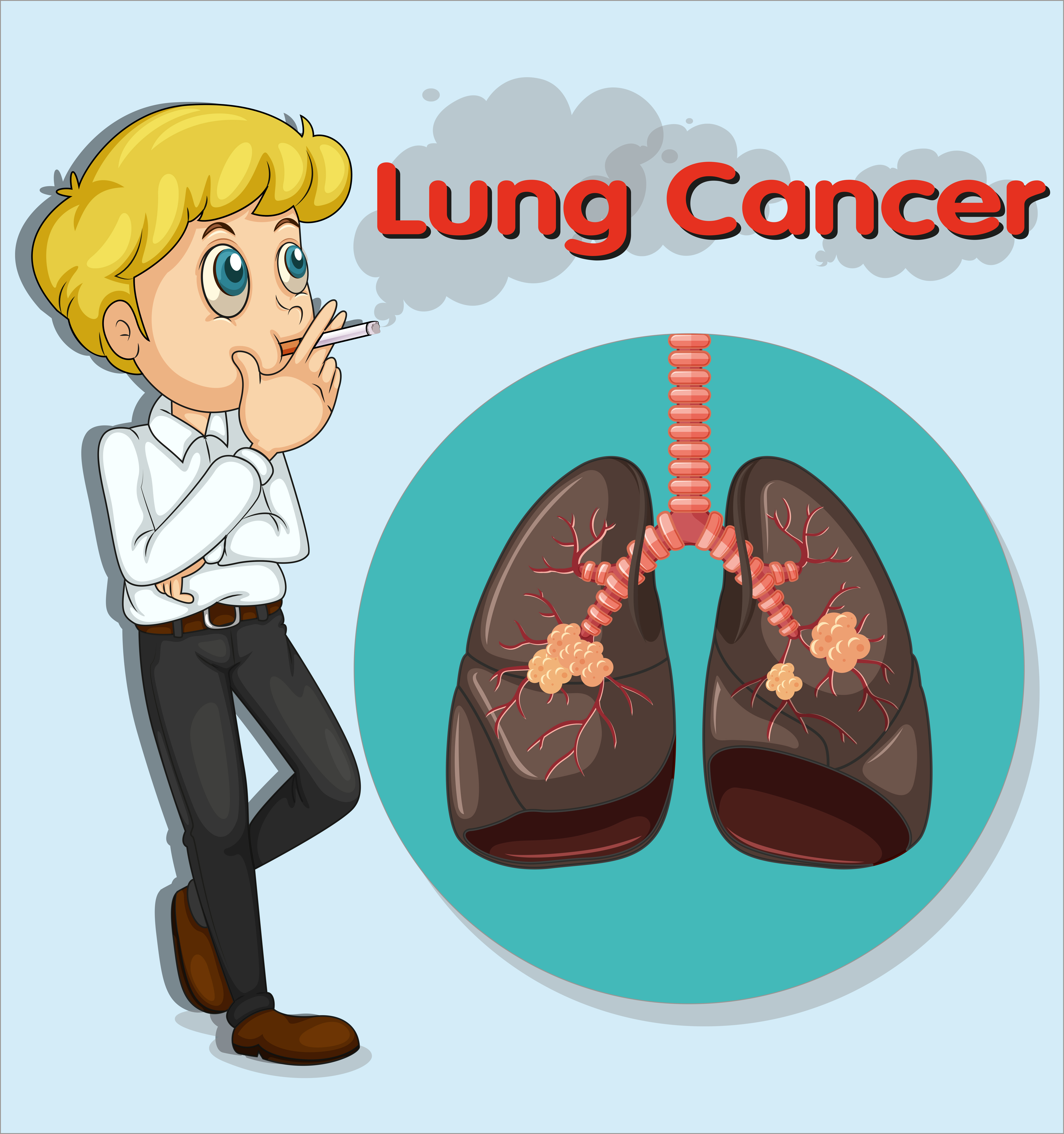 Lungs Logo: Man Smoking And Lung Cancer 431848 Vector Art At Vecteezy