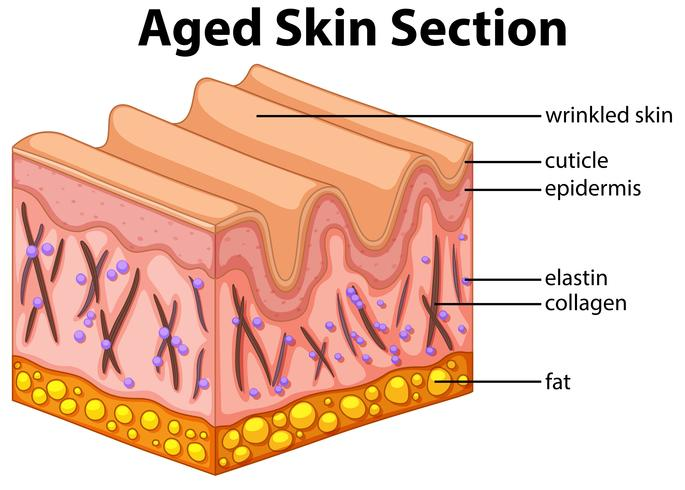 Aged skin section diagram