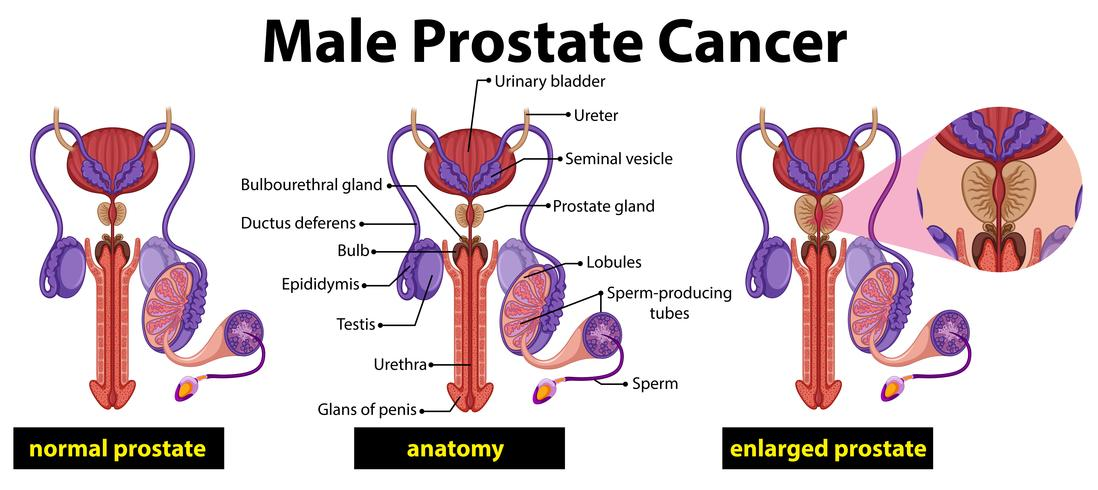 Male prostate cancer diagram vector