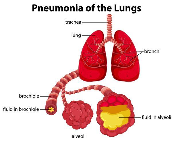 Diagrama de neumonía de los pulmones vector