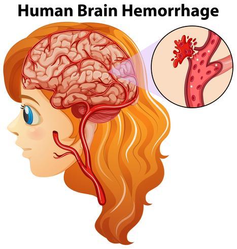 Diagrama que muestra hemorragia cerebral humana. vector