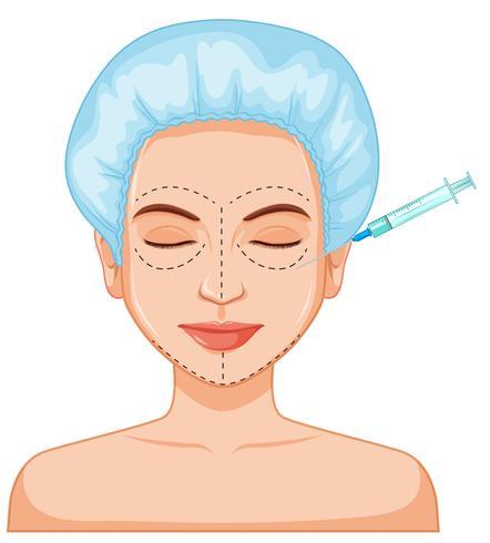 Injection de peau femme botox vecteur