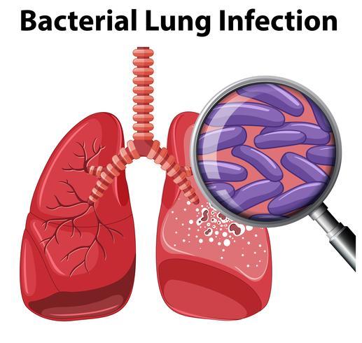 Een bacteriële longinfectie op een witte achtergrond