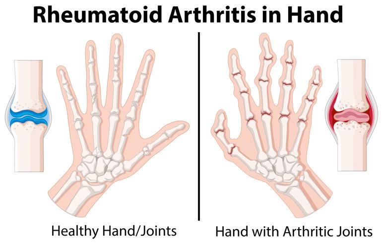 Diagram showing rheumatoid arthritis in hand - Download Free Vector on hand palmar surface, hinge joint, fingers diagram, carpometacarpal joint, hand bones, acromioclavicular joint diagram, thenar eminence, metacarpal diagram, temporomandibular joint, ball and socket joint, joint movement diagram, diarthrotic joint diagram, hand joint names, medical foot diagram, pivot joint, sacroiliac joint diagram, hand with joint, foot bones diagram, hand-eye coordination diagram, metacarpophalangeal joint, glenohumeral joint, knee diagram, hand anatomy, gliding joint, hypothenar eminence, synovial joint diagram, acromioclavicular joint, hinge joint diagram, sacroiliac joint, synovial joint, saddle joint, ligament diagram, condyloid joint, hand with pointing finger, anatomical snuff box, hand lumbricals action,