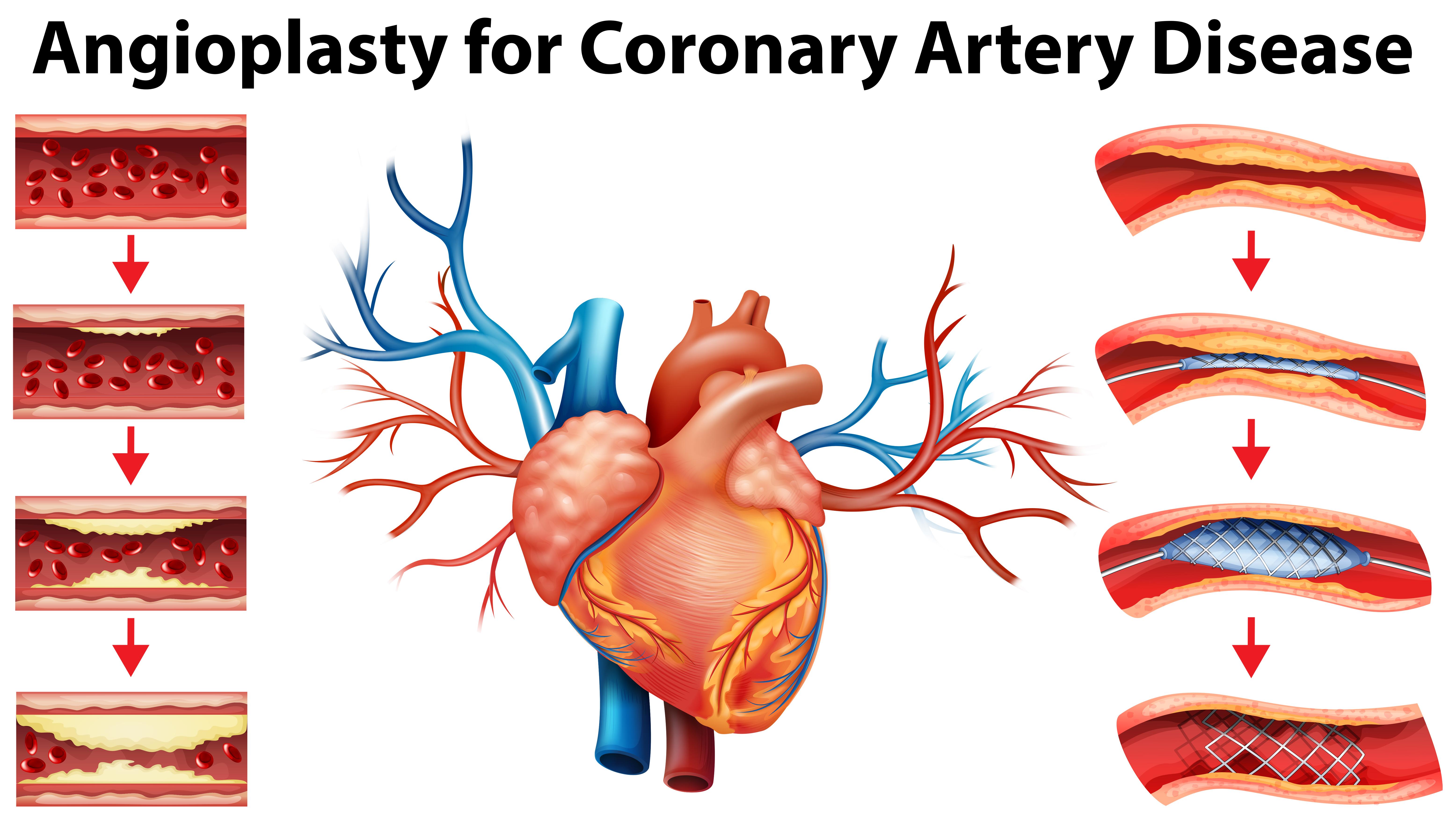 Diagram showing angioplasty for coronary artery disease ...