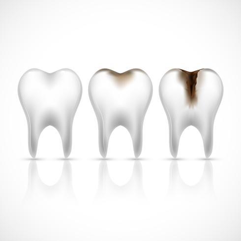 Teeth realistic set vector