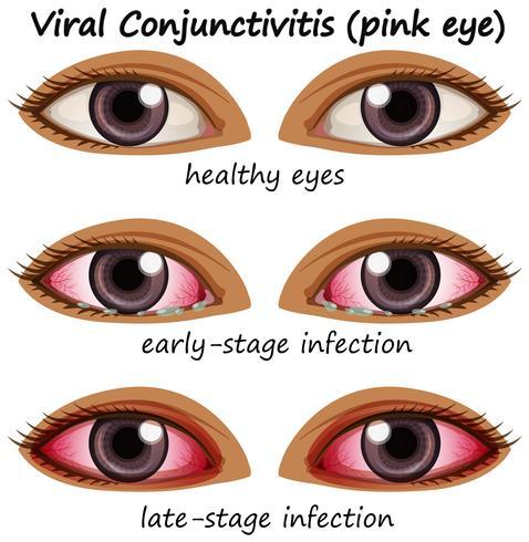 Conjuctivite virale dans les yeux humains
