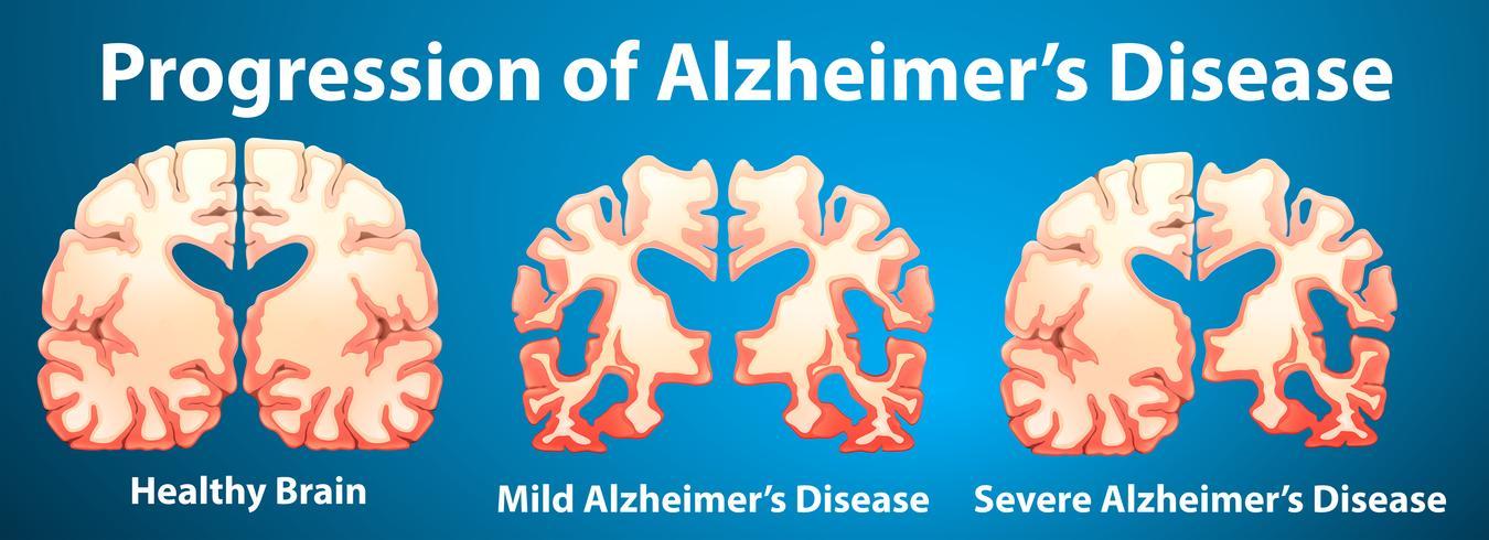 Progresión de la enfermedad de Alzheimer sobre fondo azul vector