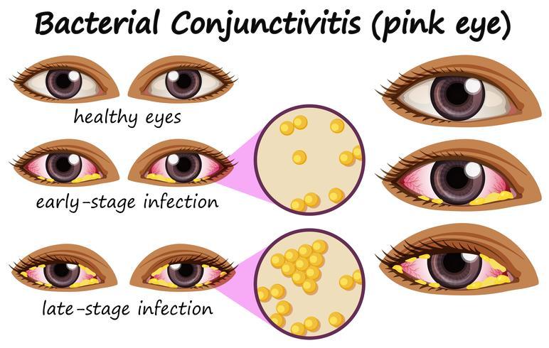 Diagramme montrant une conjonctivite bactérienne dans l'oeil humain