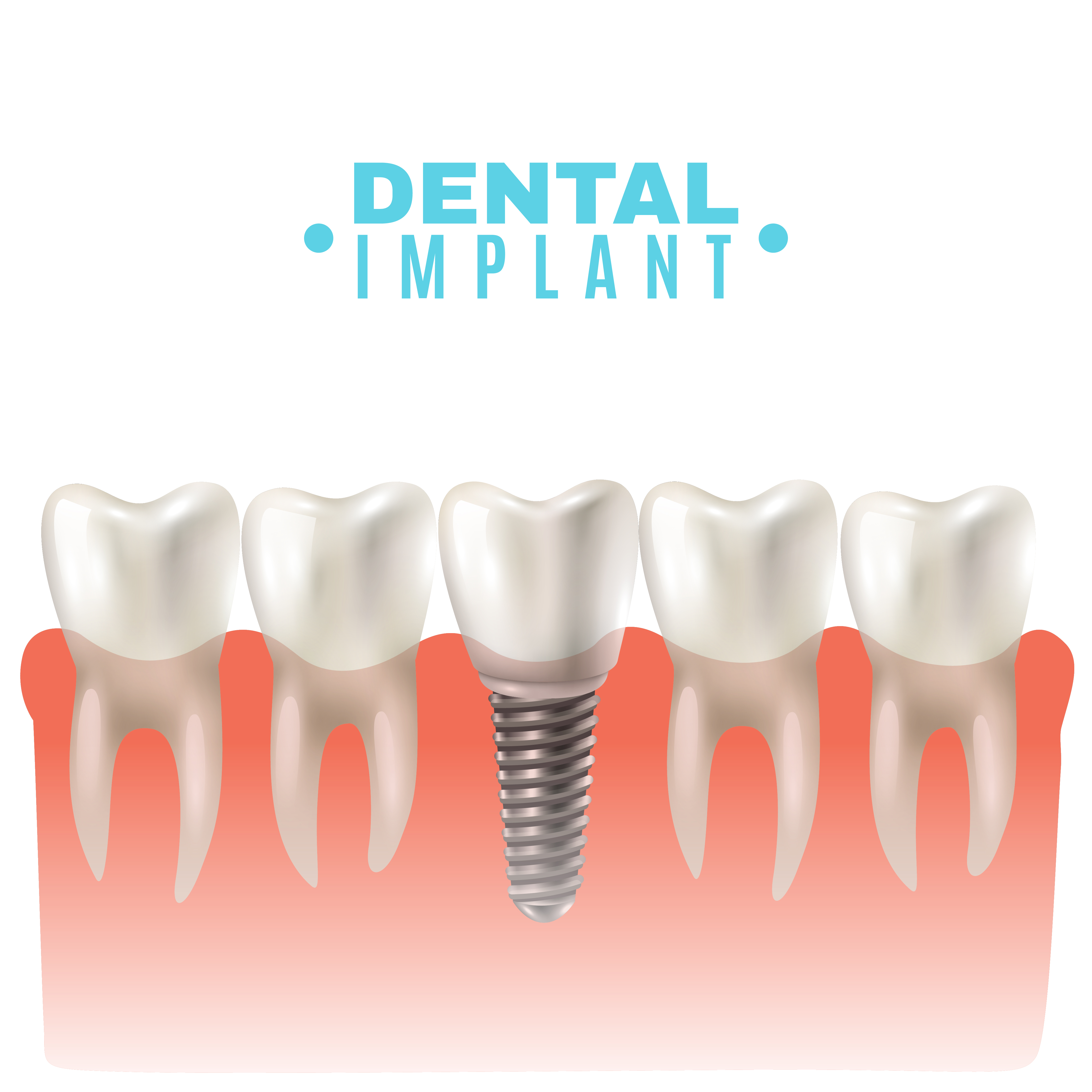 Dental Implant Model Side View Poster Download Free