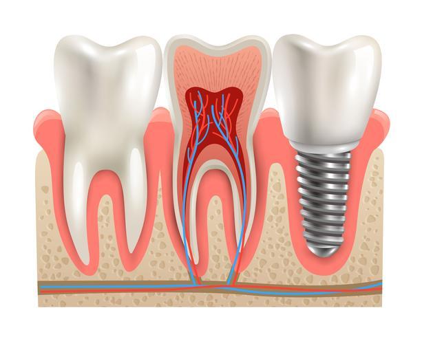 Modèle de plan rapproché d'anatomie d'implants dentaires vecteur