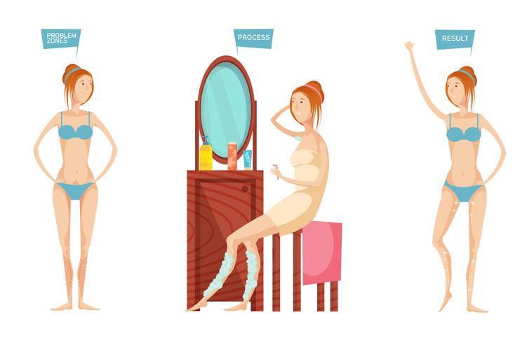 Epilation Before After Illustration vector