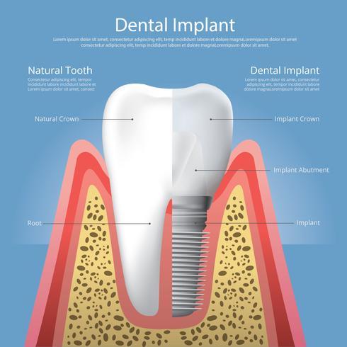Illustration vectorielle de dents humaines et implant dentaire