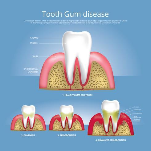 Dents humaines Étapes de l'illustration vectorielle de la maladie des gencives vecteur