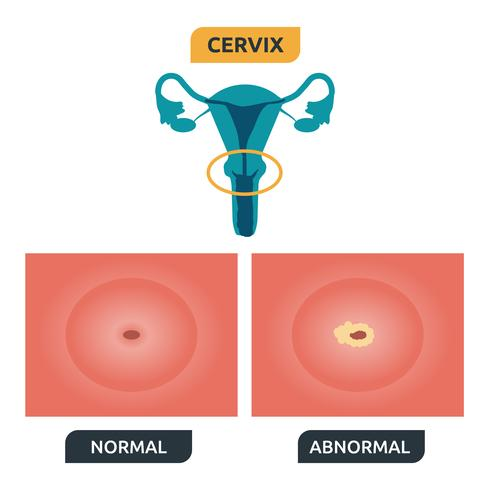 Cerviz
