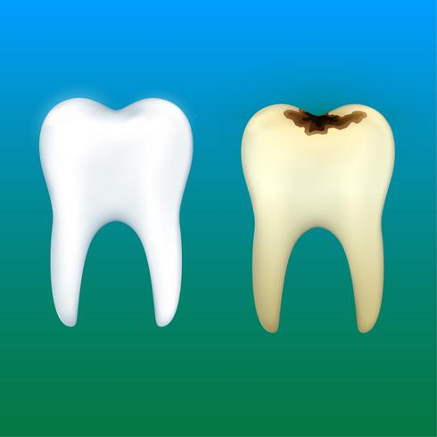 Teeth whitening and tooth decay,dental health vector.