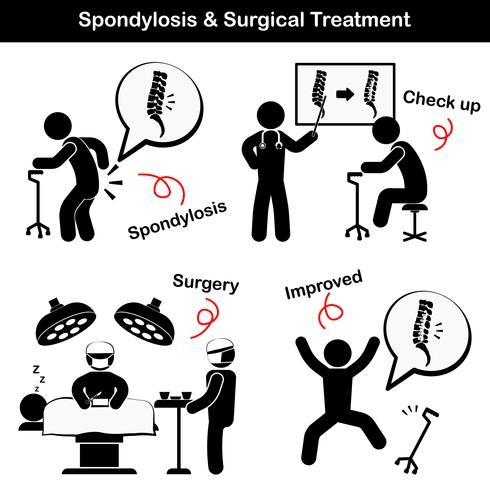 Spondylose und Spondylolisthesis und chirurgisches Behandlungspiktogramm (Alter Mann leidet an Kreuzschmerzen (Lendenschmerzen), er wurde untersucht und operiert, die Wirbelsäule wurde intern durch Platte und Schraube fixiert)