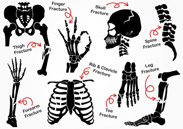 Set Bone Fracture Icon ( Pelvic , Hip , Thigh ( femur ) , Hand , Wrist , Finger , Skull , Face , Vertebra , Arm , Elbow , Thorax , Foot , Heel , Leg ) black & white design ( health care concept )
