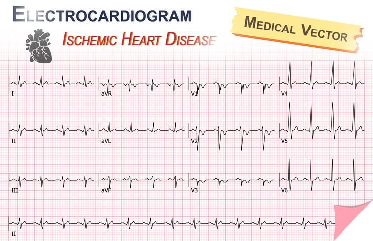 Elektrokardiogram (EKG, EKG) av ischemisk hjärtsjukdom (hjärtinfarkt) och hjärtatikettens anatomi vektor