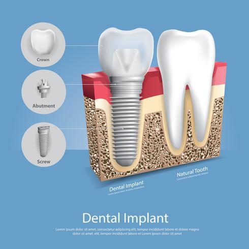 Menschliche Zähne und Zahnimplantat-Vektor-Illustration