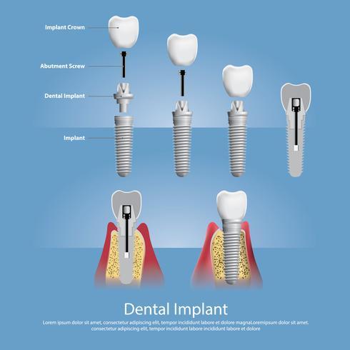 Mänskliga tänder och Dentalimplantat Vektorillustration vektor
