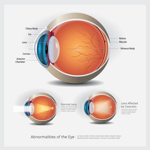 Anatomía ocular con anomalías oculares, ilustración vectorial vector