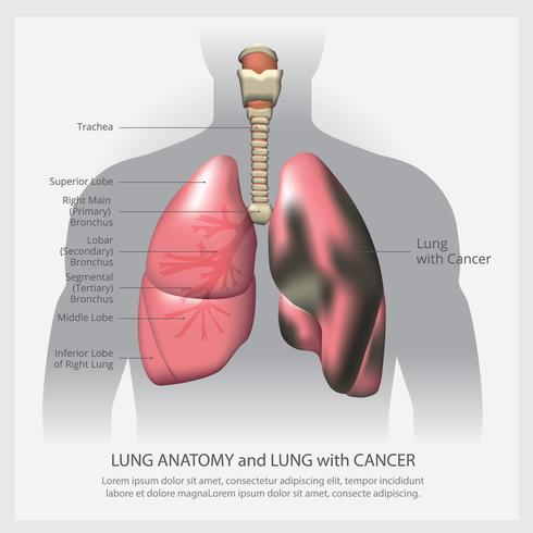 Lung with Detail and Lung Cancer Vector Illustration