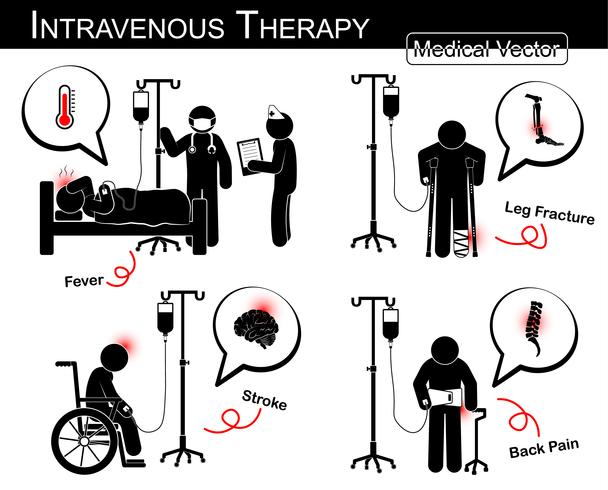 Conjunto de vector hombre palo. Paciente con enfermedad múltiple con fluido intravenoso.